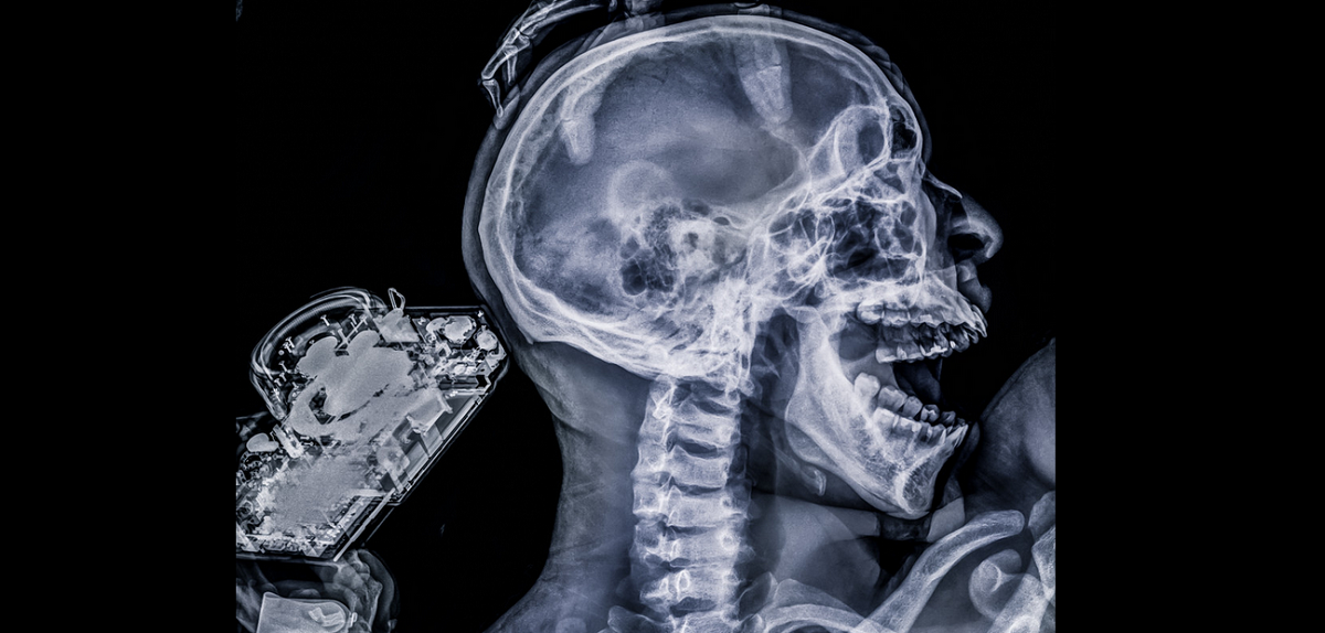 MRI X Ray image of screaming skull - man holding a camera - self portrait by Benjamin Von Wong - All Rights Reserved